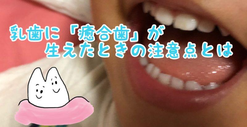 乳歯が2本くっついて生えてきた!私がしている癒合歯への対処方法はこれ