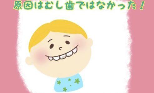 乳歯がでこぼこ、欠けているのは虫歯じゃなかった!その原因は?